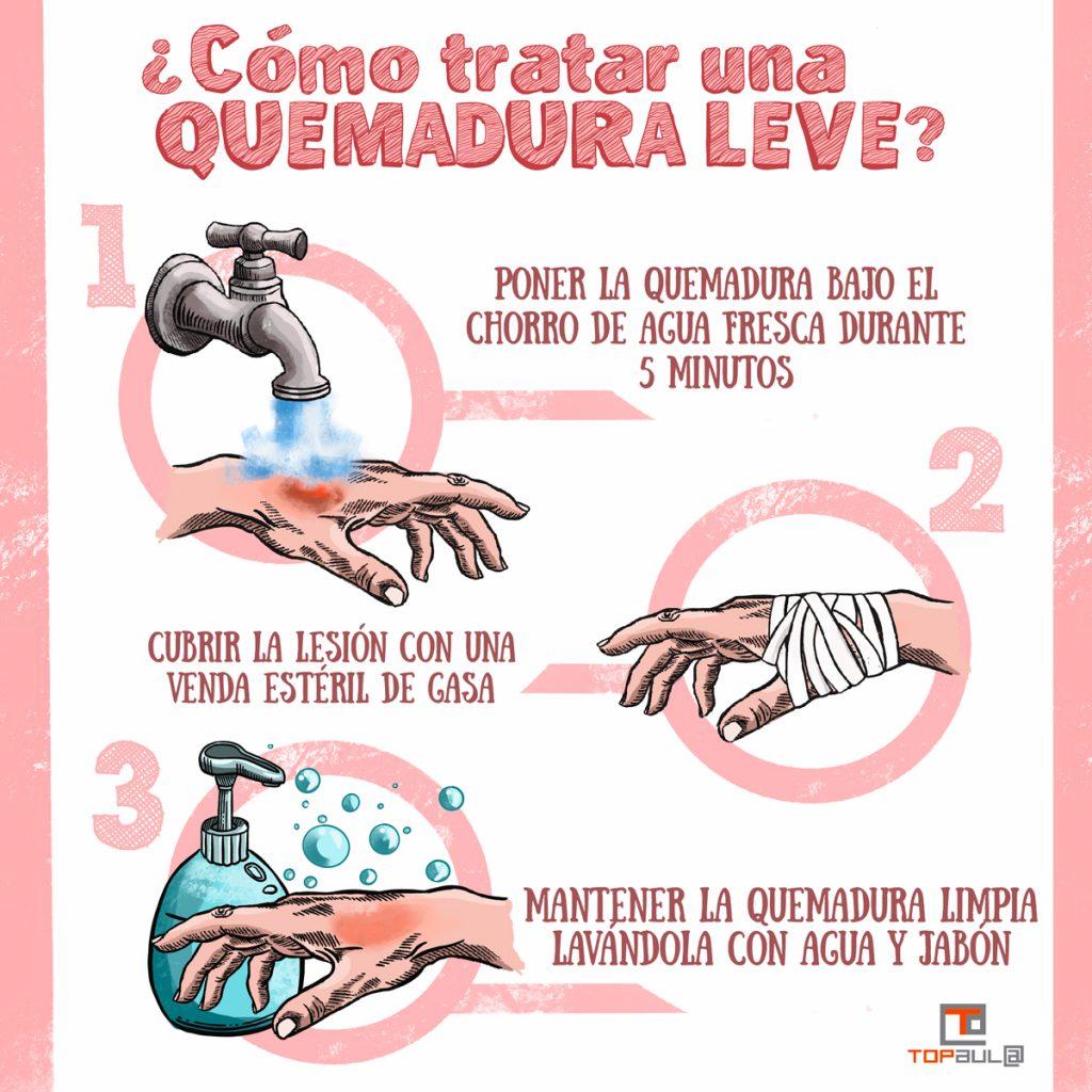 Infografía - ¿Cómo debemos actuar en caso de sufrir una quemadura? - www.topaula.com