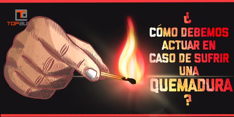 ¿Cómo debemos actuar en caso de sufrir una quemadura? - www.topaula.com