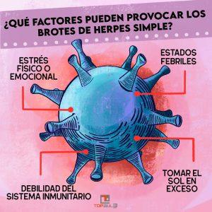 Infografía - Herpes simple: Causas y tratamiento - www.topaula.com