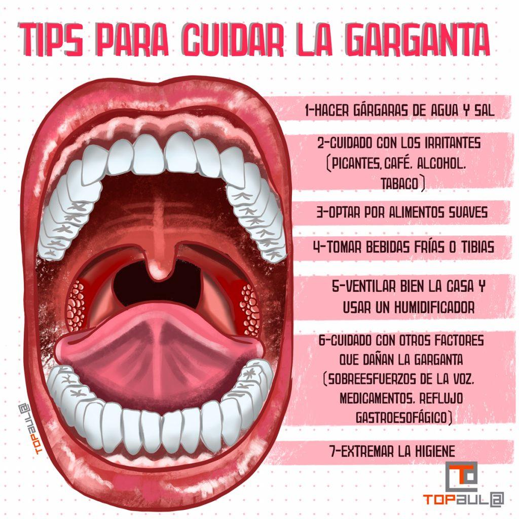 Infografía - Faringitis y amigdalitis: Tips para cuidar la garganta - www.topaula.com